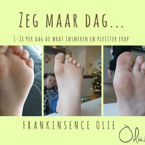 Frankinsence en voetwratten